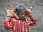 Шокирующее зрелище: мальчик с 16-килограммовыми руками - ФОТО: Фоторепортажи