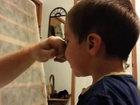 Этот мальчик чуть не остался без носа - ВИДЕО: Видеоновости