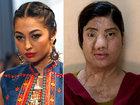 Эти обезображенные красавицы стали жертвами насилия - ФОТО: Фоторепортажи