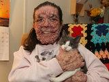 Редчайшая болезнь превратила женщину в монстра - ФОТО: Это интересно