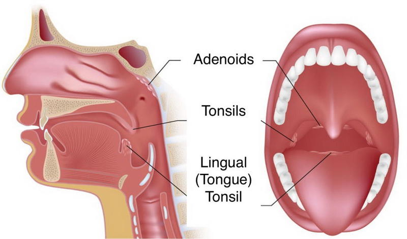 Tonsils removed in adults what to eat