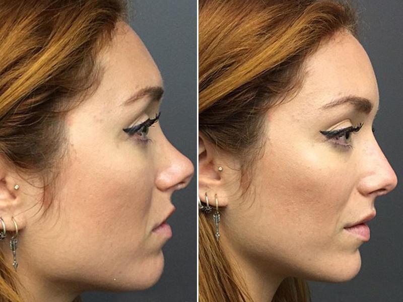 Врач меняет форму носа за 10 минут