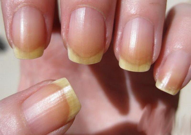 Гипергидроз ногтей