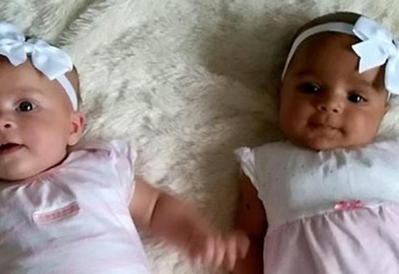 В Британии родились разноцветные близнецы