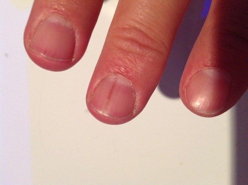 Черные полоски под ногтем