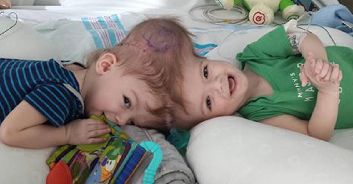 ВСША хирурги поделили 13-месячных сиамских близнецов