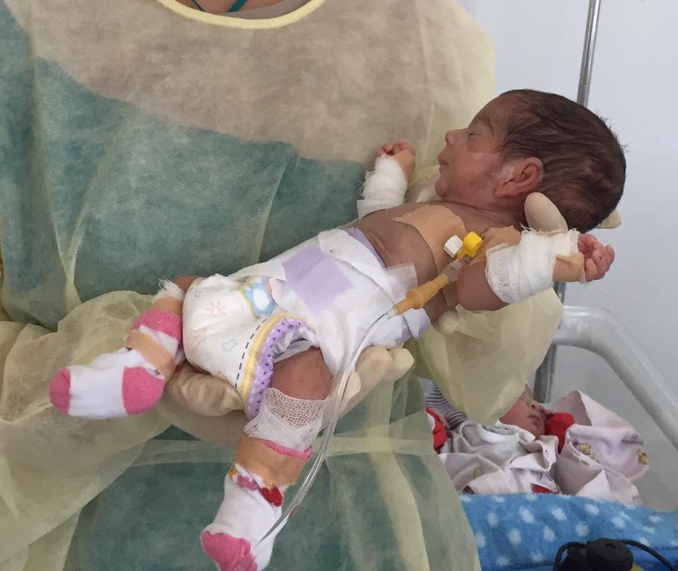 Ребенок на 27 неделе беременности родился