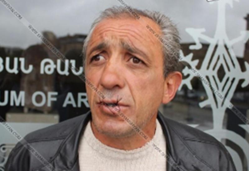 Безработный в центре Еревана зашил себе рот