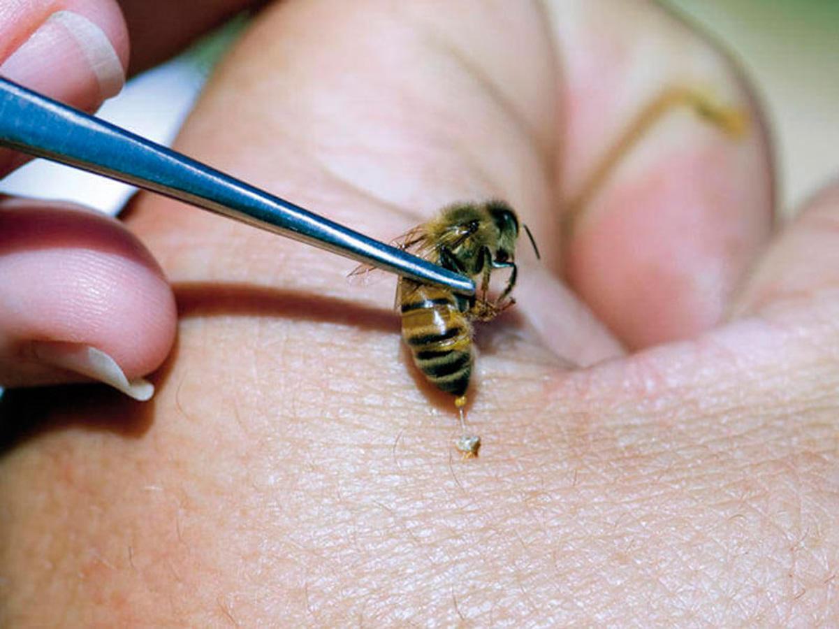 Что делать, если укусила оса или пчела 50