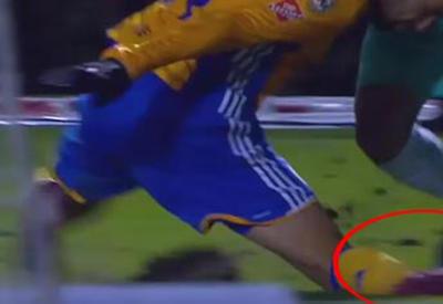 """Футболист неудачно упал и сломал ногу во время матча <span class=""""color_red"""">- ВИДЕО</span>"""