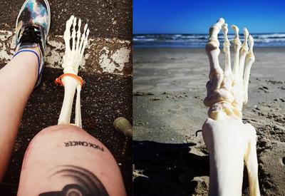 Американка ведет Instagram с приключениями своей ампутированной ноги - 12 ФОТО
