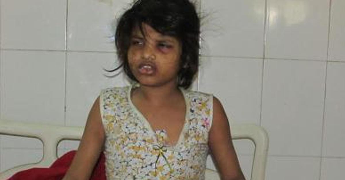 Девочка-маугли жила влесах Индии состаей обезьян