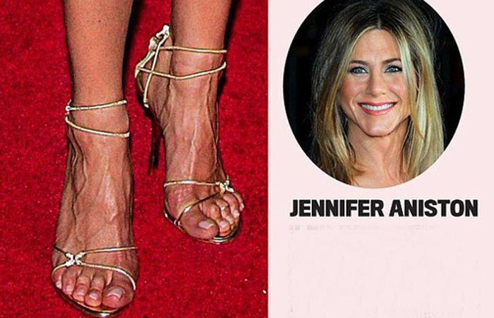 Пальчики знаменитостей на ногах фото 600-633