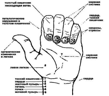 Бледные ногти плоские или выгнутые с продольными бороздками