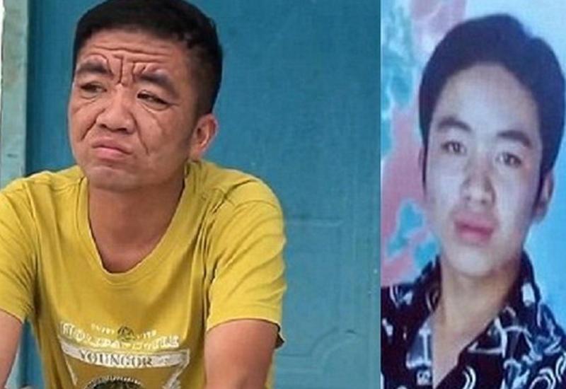 За 10 лет китайский юноша превратился в старика - ФОТО
