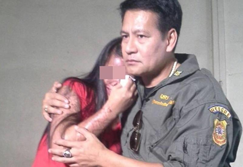 Ее изуродовала авария, но он доказал, какой бывает настоящая любовь