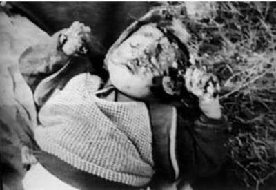 Геноцид в Ходжалы - одно из самых чудовищных преступлений ХХ века - ФОТО