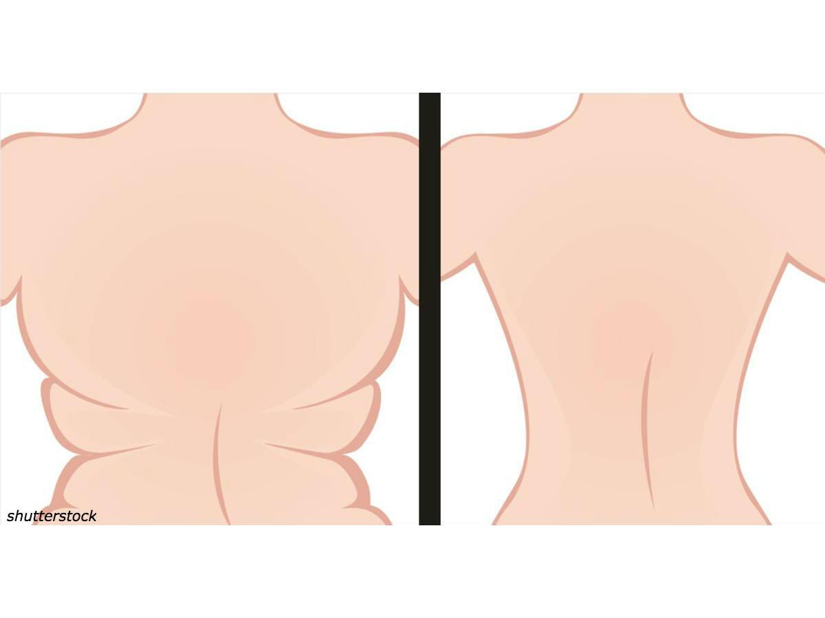 10 реальных способов убрать жир с живота, спины и боков.