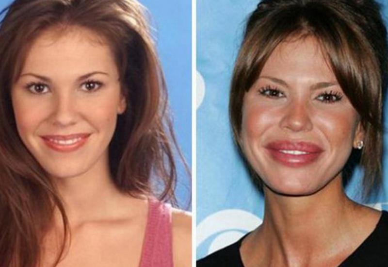 12 известных женщин до и после пластики