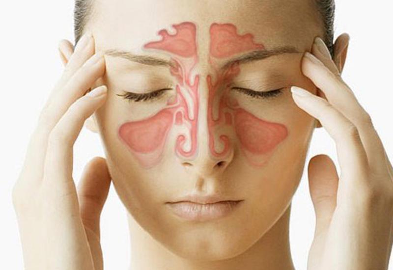 7 средств, которые быстро помогут, если заложен нос