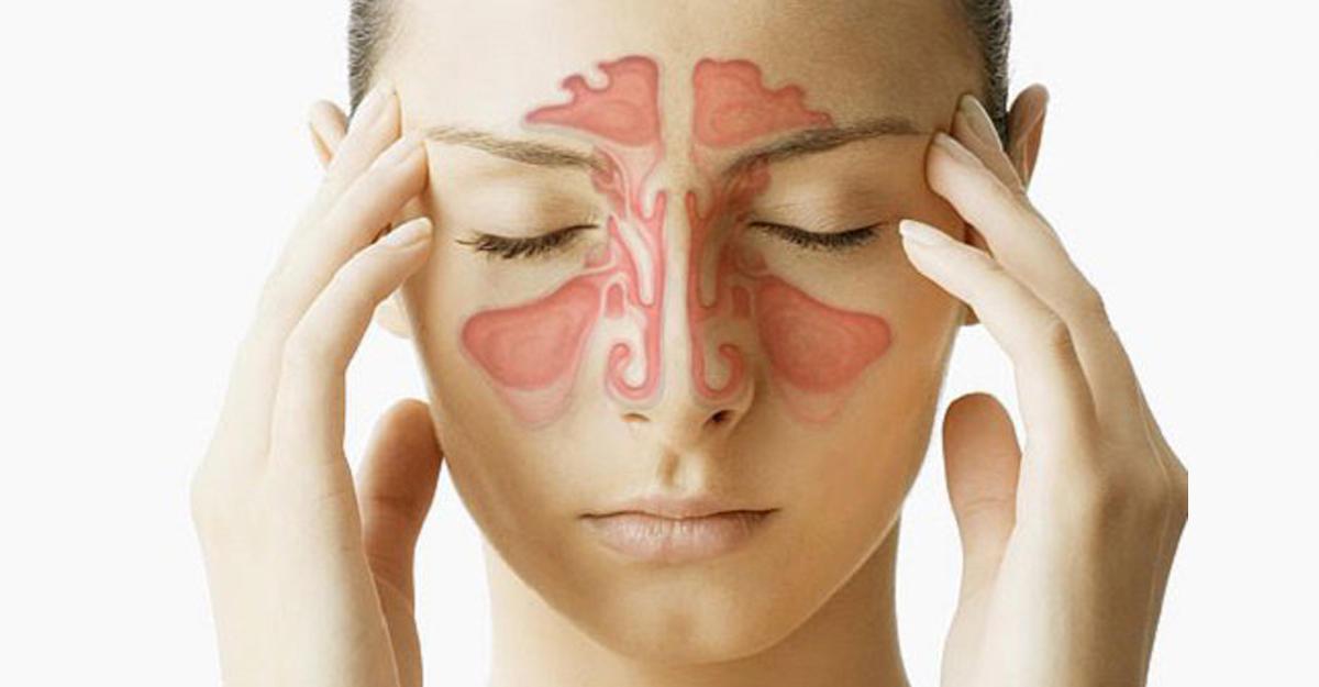 средство от аллергии фенистил