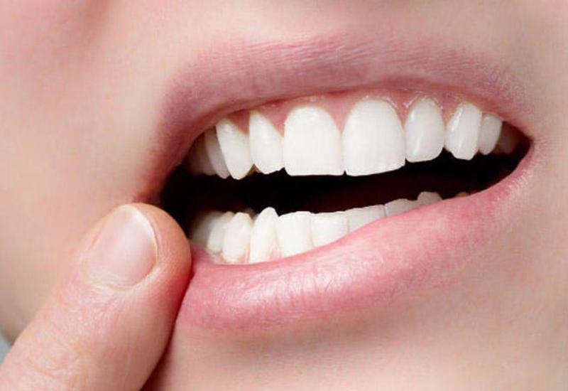 Коронавирус оказался опасен для зубов