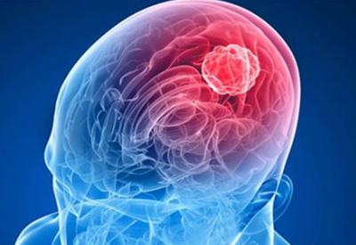 Опухоль мозга вылечат с помощью вируса бешенства