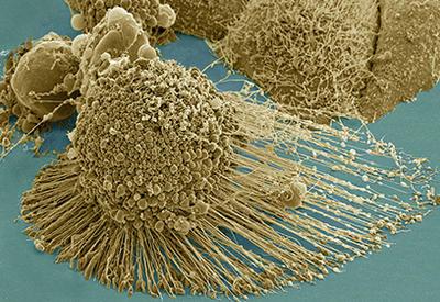 Ученые нашли способ состарить раковые опухоли