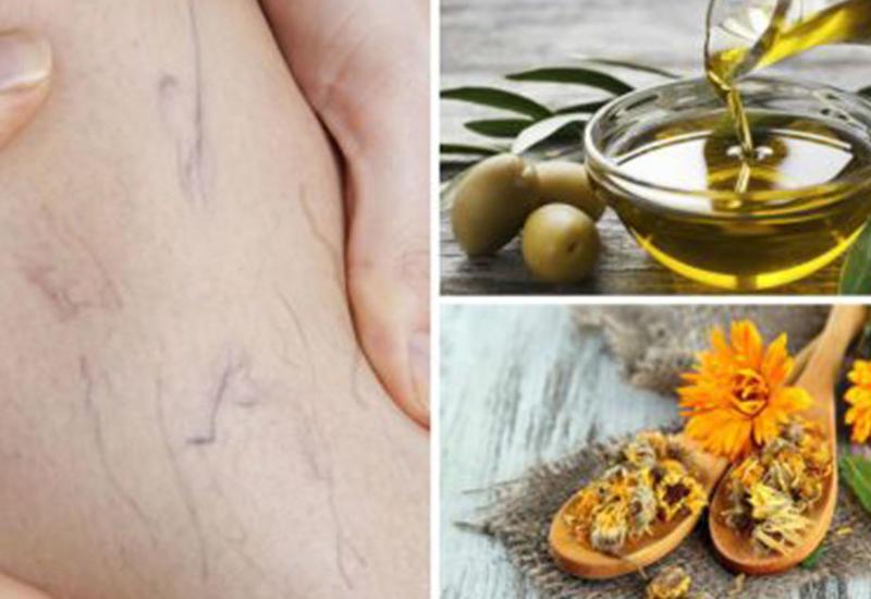 Варикозное расширение вен: средство из оливкового масла и календулы
