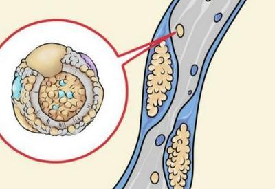 5 продуктов, которые чистят артерии!