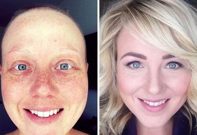 "25 фотографий храбрецов, которые победили рак <span class=""color_red"">- ФОТО</span>"