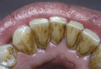 Как легко удалить зубной камень без визита к зубному врачу!