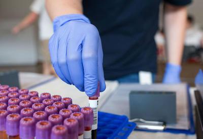 Разработан ДНК-тест, диагностирующий смертельный рак груди на ранней стадии