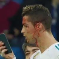 """Роналду уткнулся в телефон, получив ногой по лицу на футбольном поле <span class=""""color_red"""">- ВИДЕО</span>"""