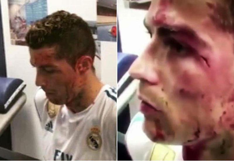"""Как выглядел Роналду после травмы в матче с """"Депортиво"""" <span class=""""color_red"""">- ВИДЕО</span>"""
