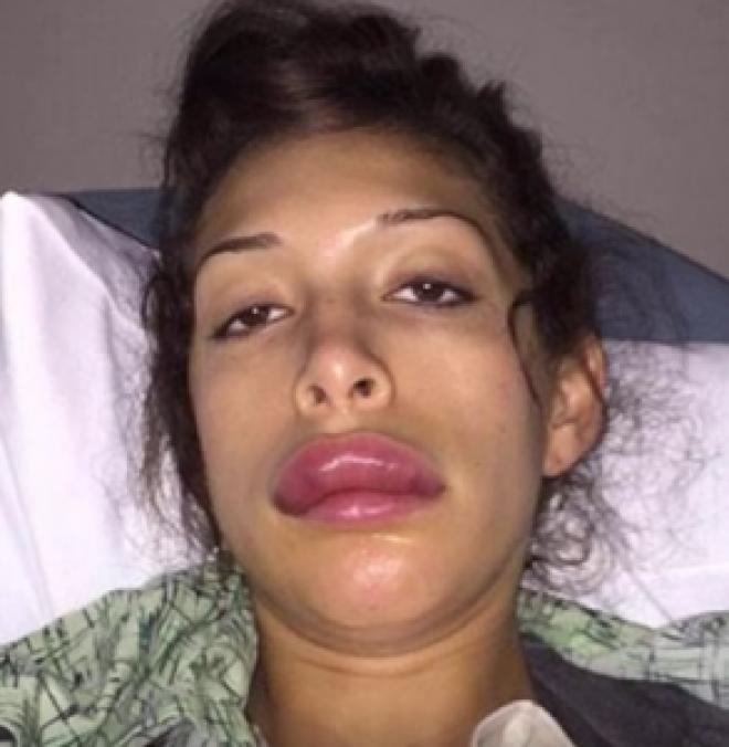 15 людей которых пластическая операция сделала страшно красивыми