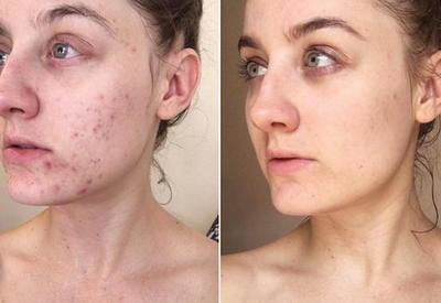 """Мое лицо до и после: 10 фото о том, как изменения в жизни влияют на внешность <span class=""""color_red"""">- ФОТО</span>"""