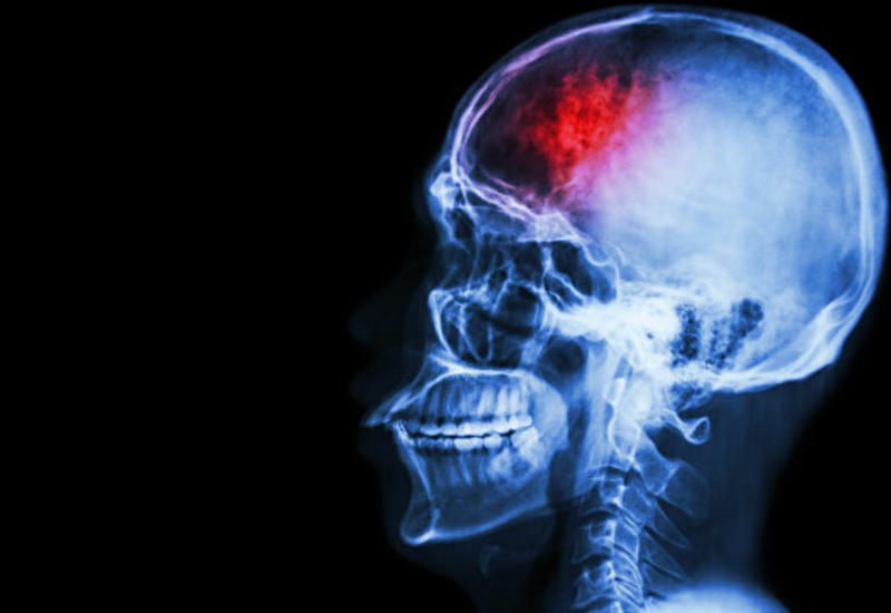 Болезнь Альцгеймера все же заразна?