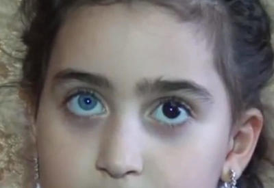 """6 yaşlı Zəhranın gözlərinin biri göy, digəri qara rəngdədir <span class=""""color_red"""">- VİDEO</span>"""