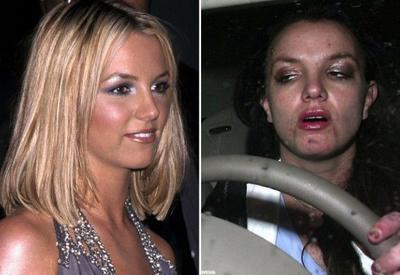 До и после наркотиков: Как звезды растеряли былую красоту из-за зависимости