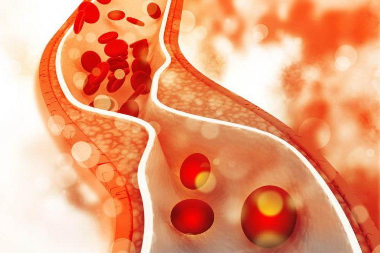 Миндаль и холестерин