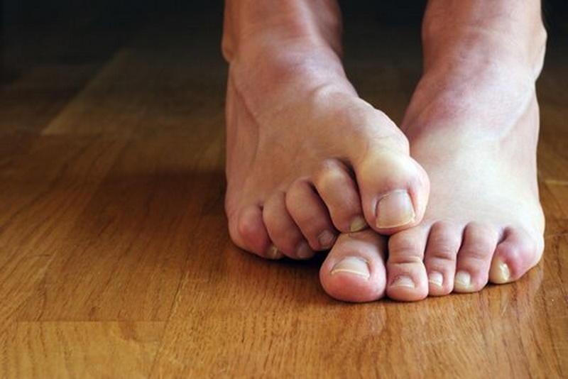 Одна из проблем с ногтями грибок