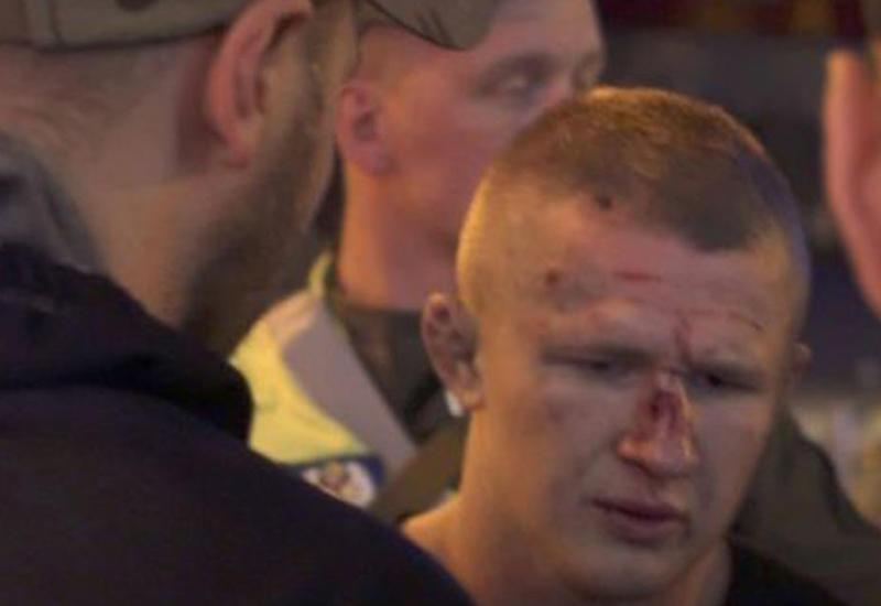 """В Киеве хулиганы напали на болельщиков «Ливерпуля» <span class=""""color_red"""">- ВИДЕО</span>"""