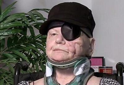 В США старушка посидела с медведем на кухне и лишилась глаза