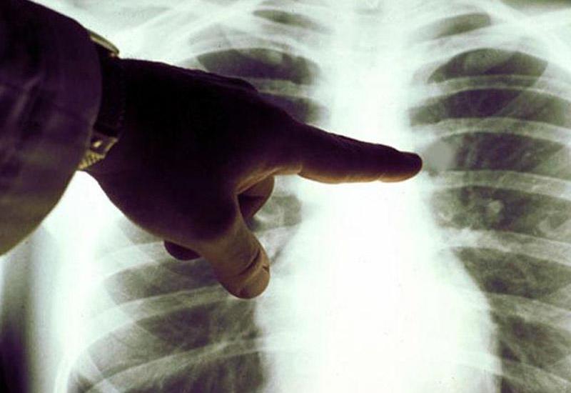 УЗИ и рентген бесплатны для застрахованных