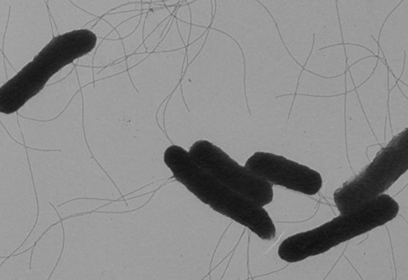 """В Бразилии обнаружены десятки штаммов новых """"супермикробов"""""""