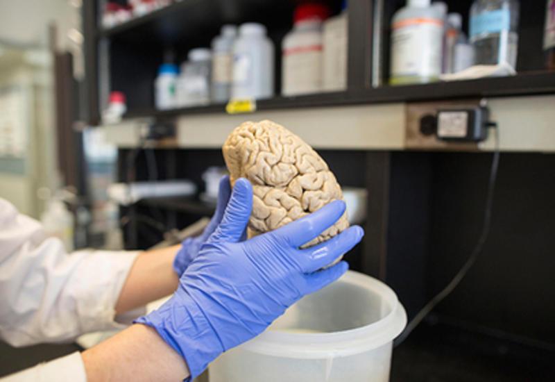 Разгадана столетняя тайна мозга