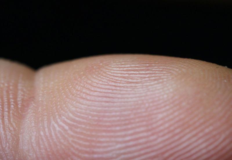 Есть лилюди безотпечатков пальцев?