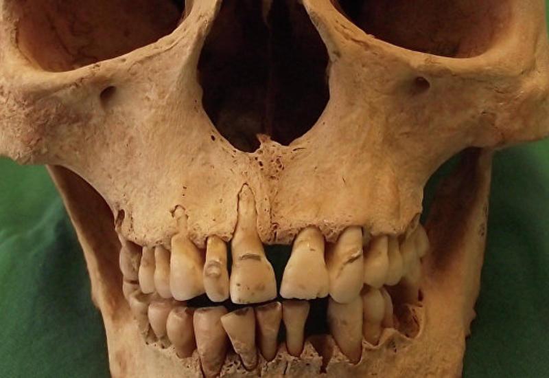 """Ученые опровергли миф о """"плохих зубах"""" средневековых европейцев"""
