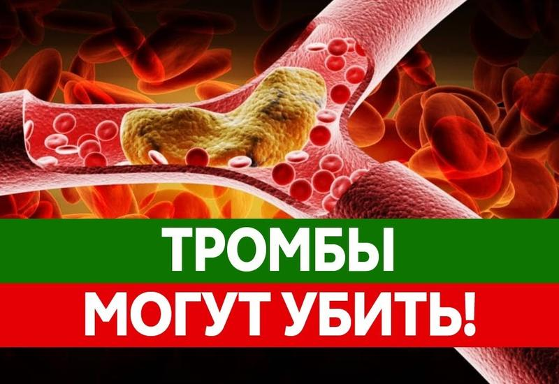 Как тромбы убивают тысячи людей
